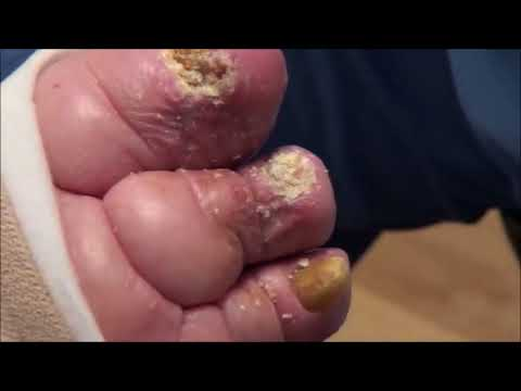 Thick Swollen Toes!  Major Treatment – Nail Fungus & Ingrown Nails