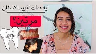تقويم الاسنان | تجربتي مع تقويم الاسنان (خلع الاسنان و أسعار التقويم)
