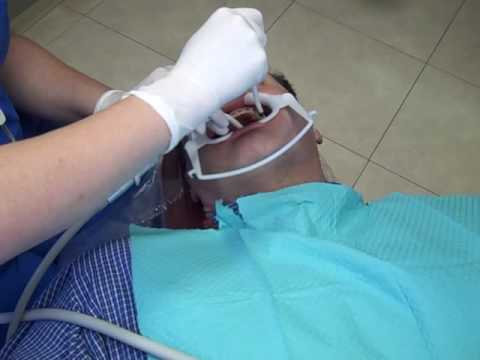 IPR and intraoral scan