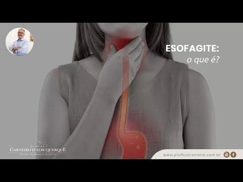 dieta para esofagite erosiva grau d de los angeles