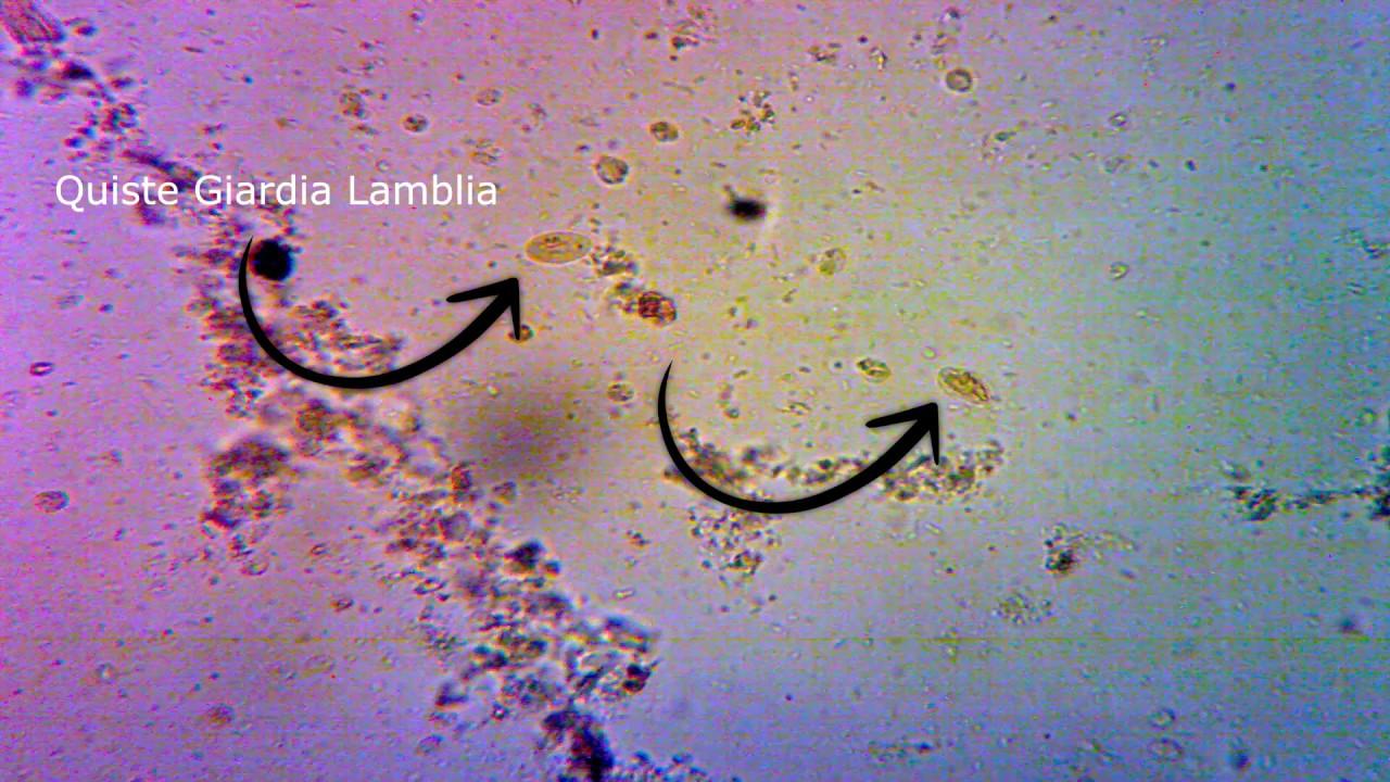 Gombaellenes gyertyák a prosztatitisből prostate infection antibiotic