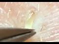 鼻角栓102.2★nose Blackheads(Larger Version)★Tweezers Only★