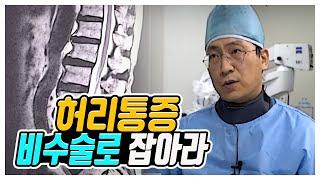 """지긋지긋한 허리통증비수술로 잡아라 """"척추질환&…"""
