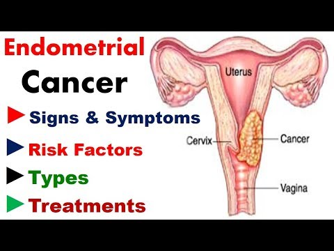 Endometrial Cancer - Signs, Symptoms, Risk Factors, Types, Treatments - Cancer Knowledge