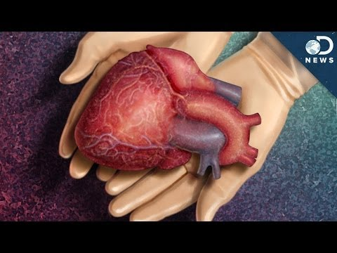 How A Dead Heart Could Save Lives - 동영상