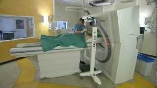 SimpliCT laser navigation system used for a CT lung biopsy