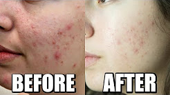 hqdefault - Chemical Peels Before And After Pictures Acne