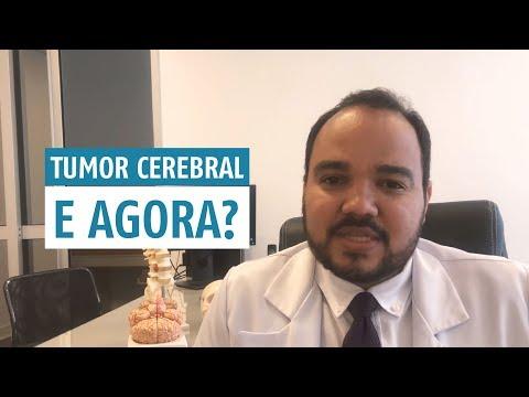 descobri-que-tenho-um-tumor-cerebral.-e-agora-?