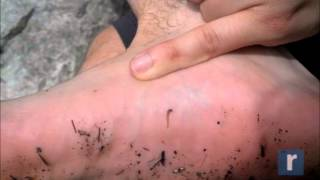 Blood-sucking leeches invade Lake Minnewaska