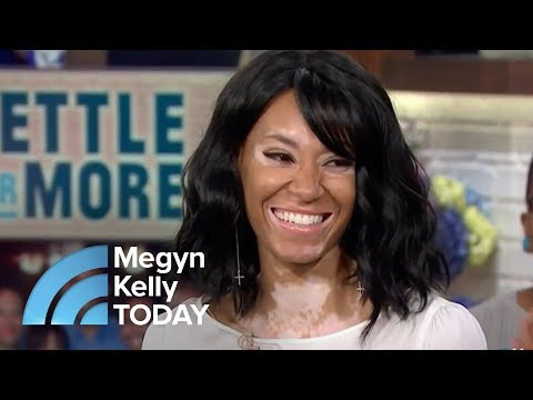 Vitiligo Didn't Stop This Young Woman From Becoming A CoverGirl Model | Megyn Kelly TODAY