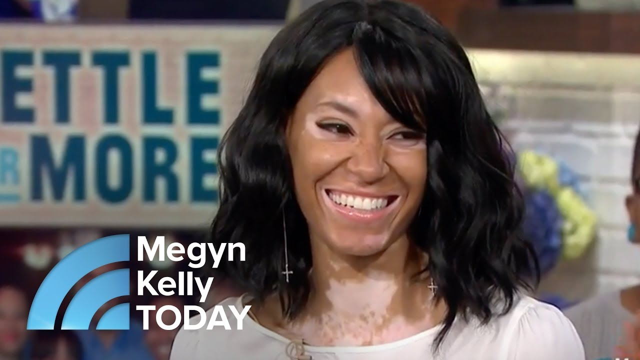 vitiligo-didn-t-stop-this-young-woman-from-becoming-a-covergirl-model-megyn-kelly-today