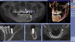 видео стоматологический рентген