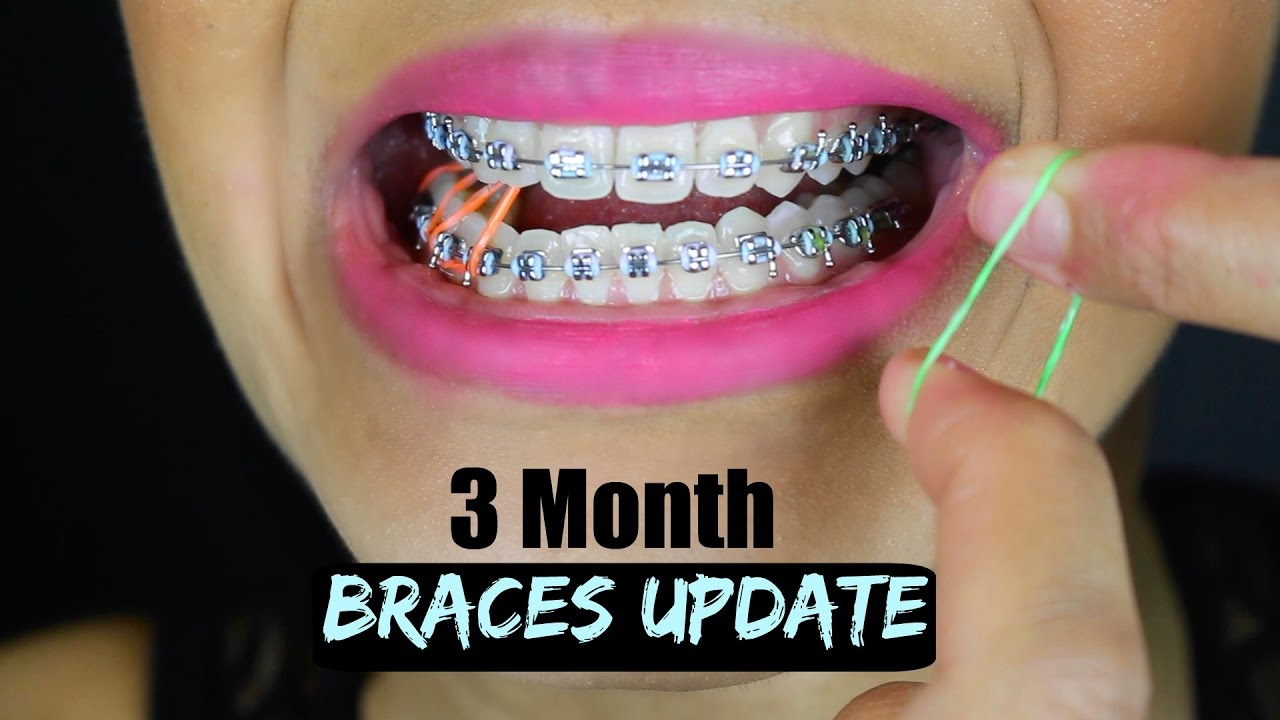 3 Month Braces Update How To Put On Elastic Bands Youtube