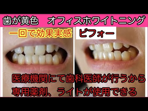 歯が黄色く友人と比較すると口を開けられないとお悩みのウェブデザイナー