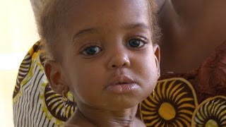 Nigeria: Urgent Need to Tackle Malnutrition - Long