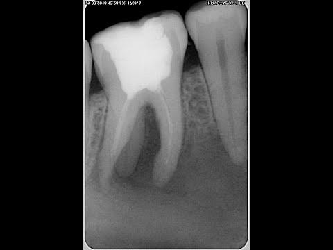 Как избежать выхода гипохлорита за верхушку? Гипохлоритная авария! Гипохлорит натрия в стоматологии