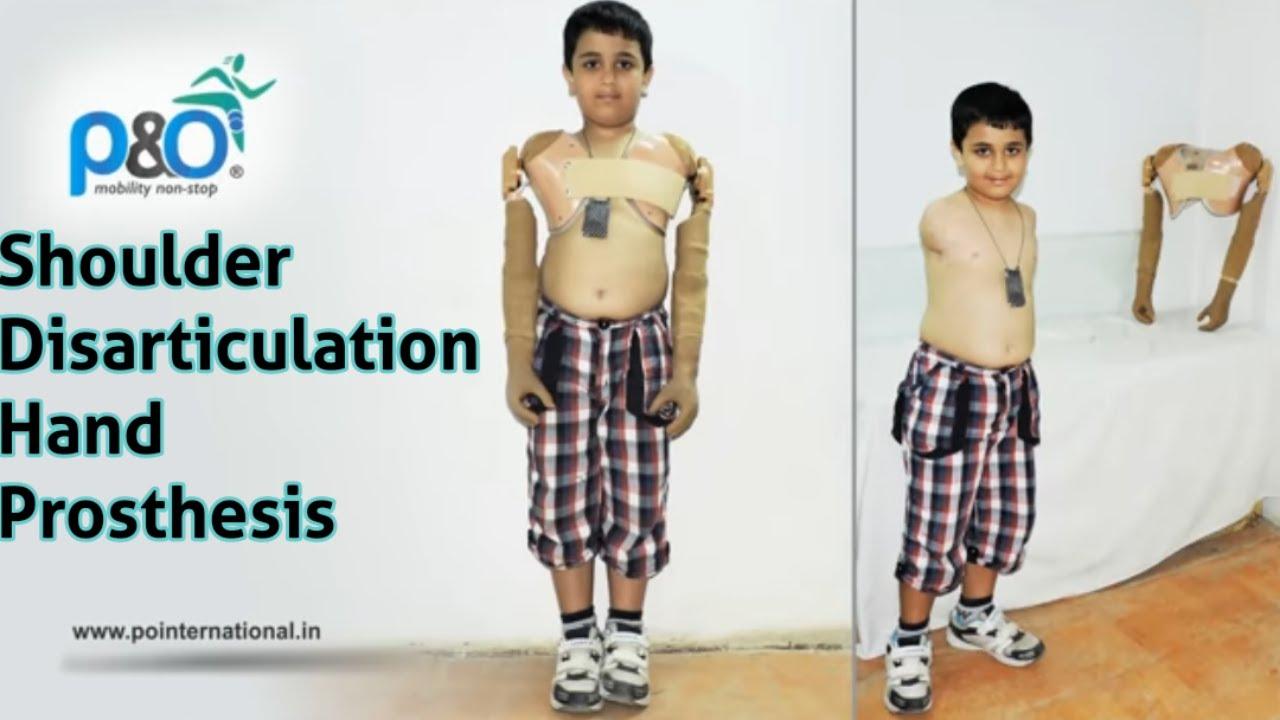 shoulder disarticulation hand prosthesis