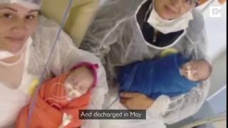 """Bà mẹ bị chết não khi mang thai ở tuần thứ 9 nhưng 123 ngày sau """"phép lạ"""" xảy ra"""