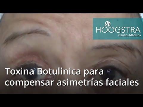 Toxina Botulinica para compensar asimetrías faciales (18123)
