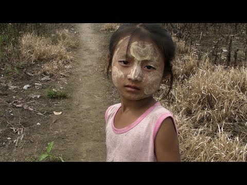 Urgency in Karen State - A  Child needs your help