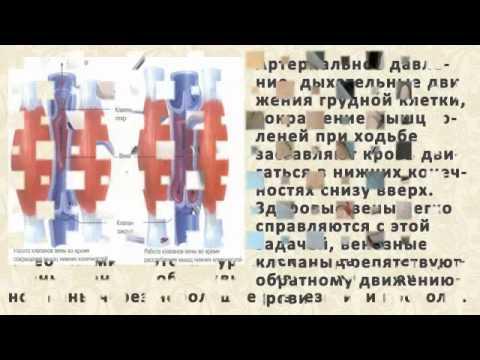 Мази, крема, гели от варикоза: Троксерутин, Троксевазин