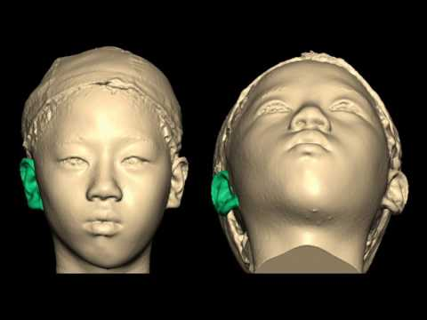 Unilateral Microtia: Using Three-Dimensional Imaging & Printing— Carolyn R. Rogers-Vizena