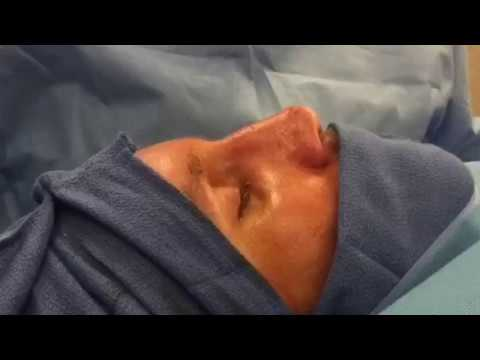 Rhinoplasty, Septoplasty, Turbinectomy - Plastic Surgery - Dr. Juris Bunkis