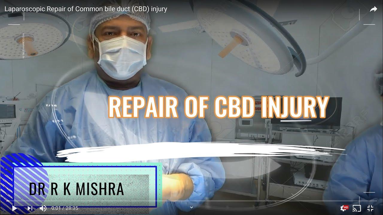 Laparoscopic Repair of Common bile duct (CBD) injury
