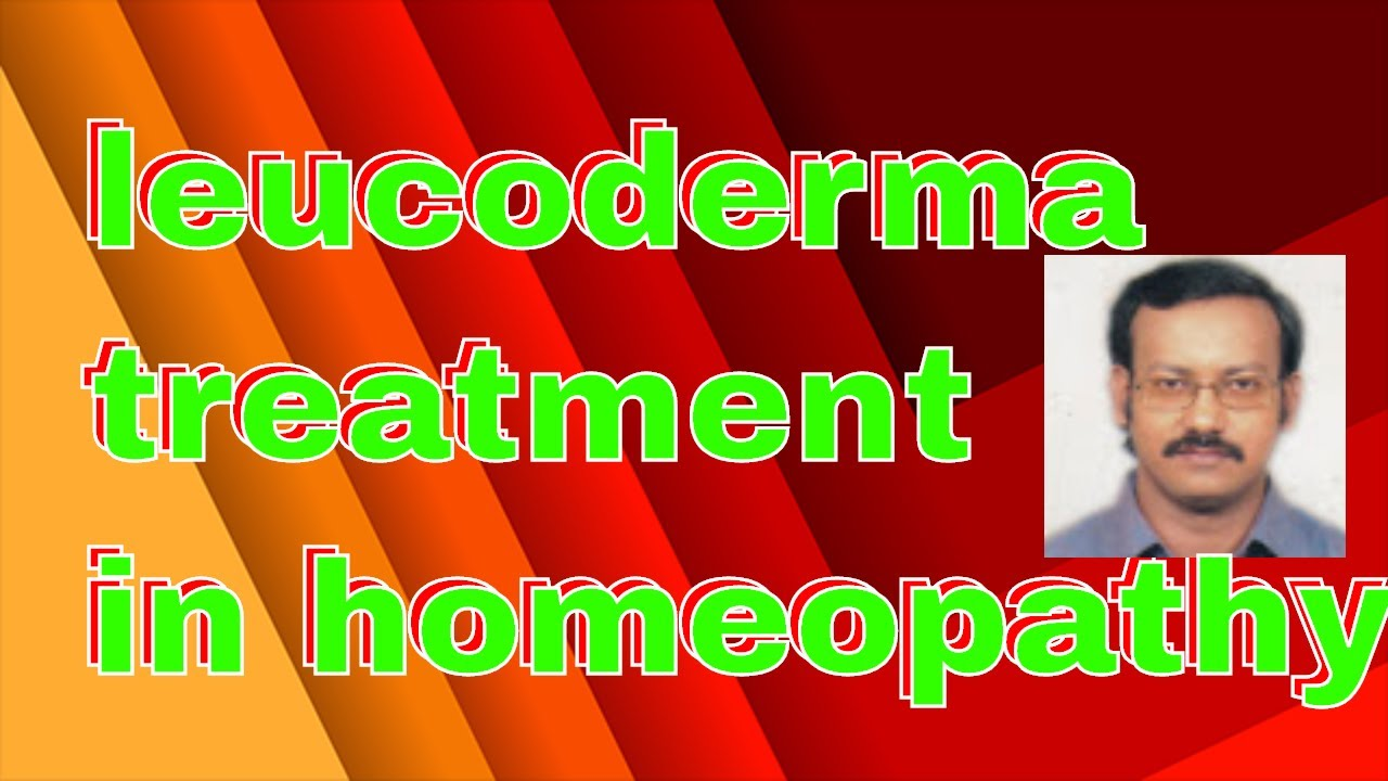 leucoderma or vitiligo/causes of leucoderma/leucoderma homeopathic  treatment/leucoderma hereditary?