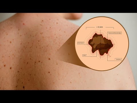 How To Tell If Your Mole is Cancerous? Use This Simple ABCD Test!
