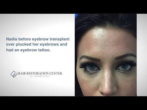 Eyebrow Hair Transplant Case Study - Hartford, Connecticut (CT)