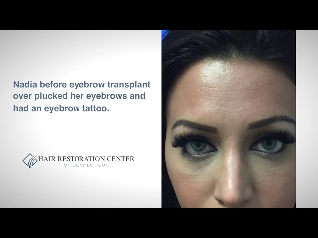 Eyebrow Hair Transplant Case Study - Hartford, Connecticut (CT)
