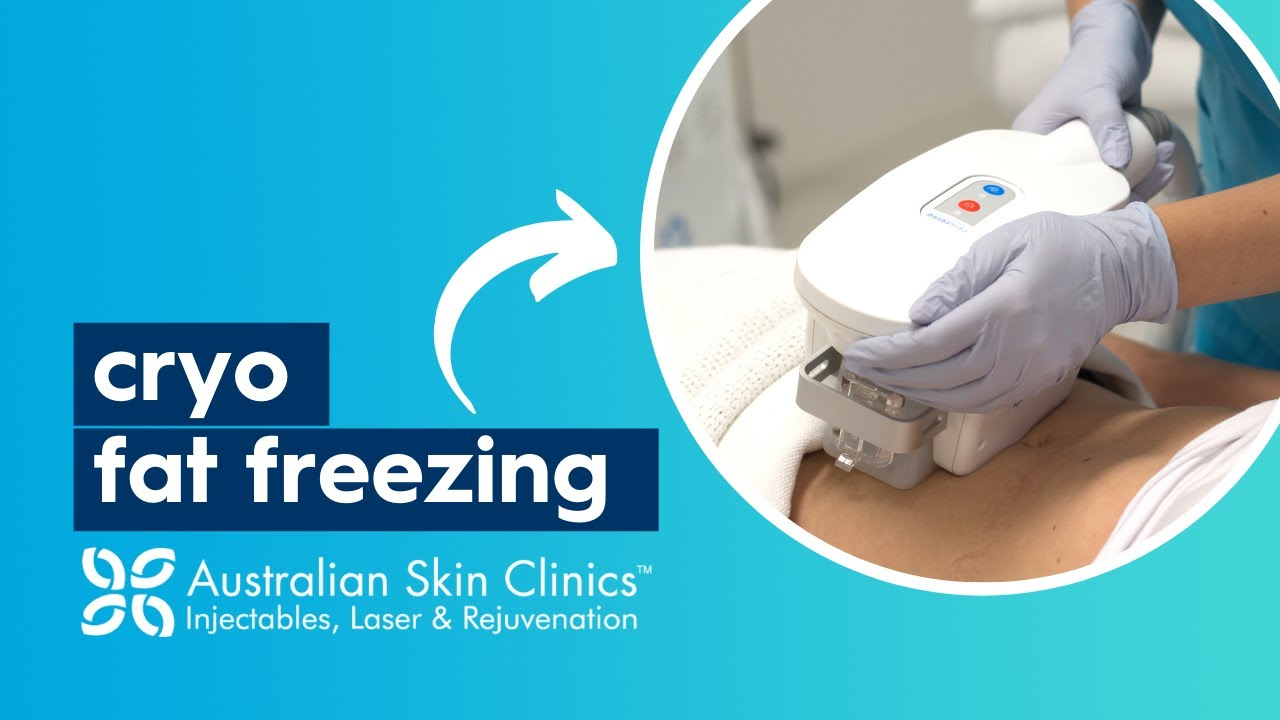 CryoDefine Fat Freezing available at Australian Skin Clinics