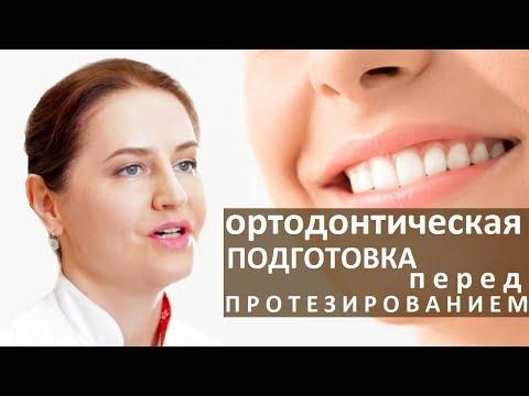Ортодонтическое лечение.  😄 Ортодонтическая подготовка перед началом ортопедического лечения. Тандем