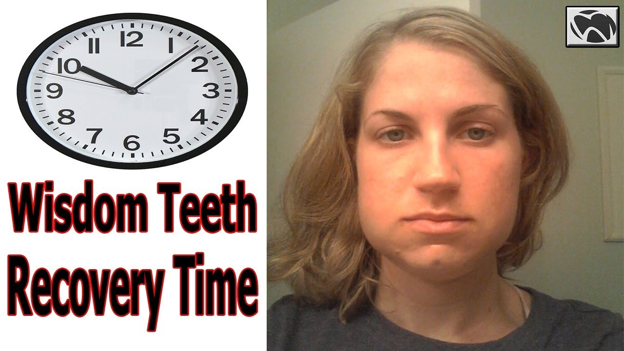 Wisdom Teeth Recovery Timeline How To Recover Fast After Wisdom Teeth Removal Youtube