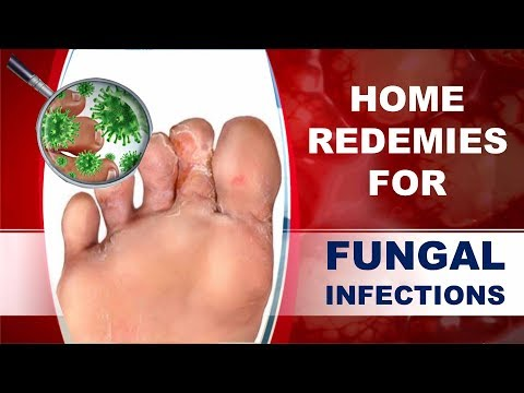 How to Cure Fungal Infection Using Home Remedies