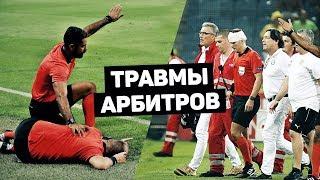 ТРАВМЫ СУДЕЙ В ФУТБОЛЕ Болельщик разбил бутылкой голову арбитра Футбольный топ 120 ЯРДОВ
