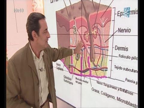 A la psoriasis los síntomas