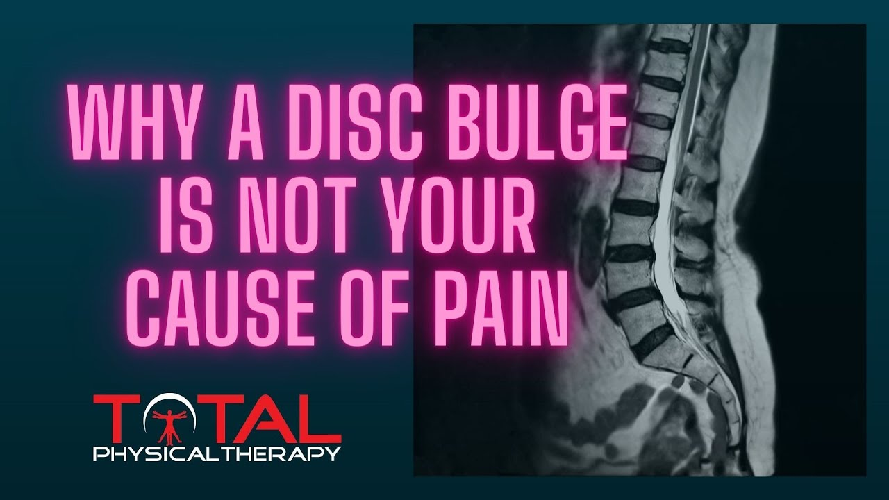 Why a disc bulge is not always the problem