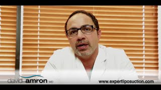 The Liposuction Recovery Process-Dr. David Amron Thumbnail