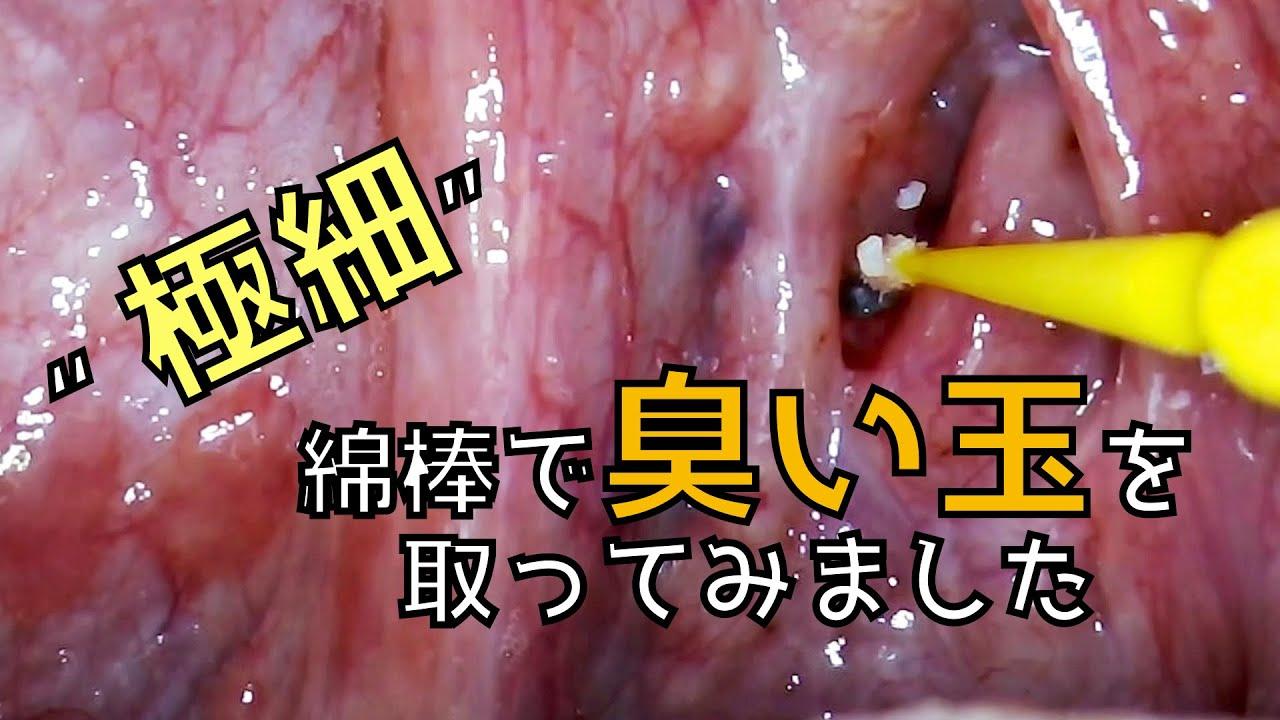 取り方 臭い玉 「臭い玉(膿栓)」の取り除き方(前編)