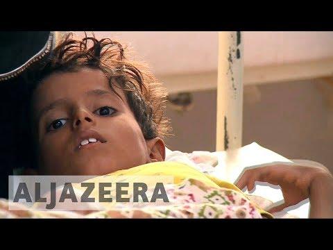 Yemen cholera epidemic spreads to 21 regions