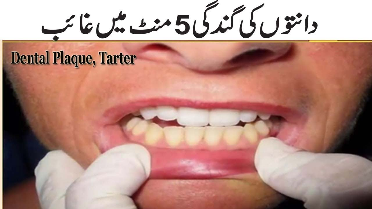 How To Remove Tartar From Teeth Without Dentist In Hindi Teethwalls