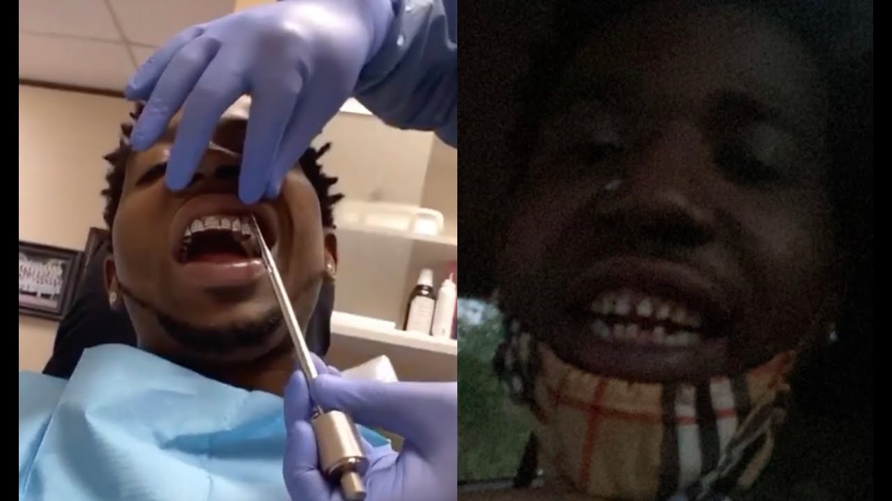 YFN Lucci Takes His Diamond Teeth Out Shows His True Baby ...