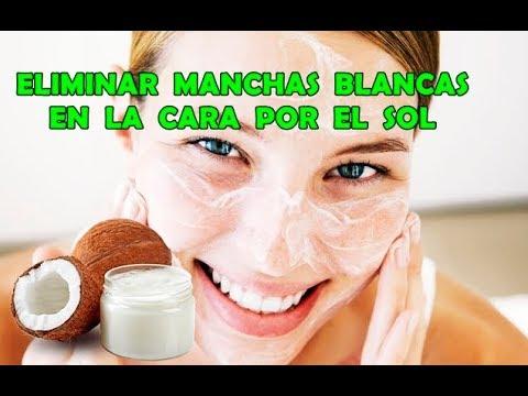 Cómo Quitar Las Manchas Blancas De La Cara Por El Sol (ACEITE DE COCO) - MBC