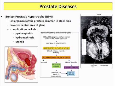 Pathophysiology   16 reproduction