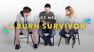 Kids Meet a Burn Survivor | Kids Meet | HiHo Kids