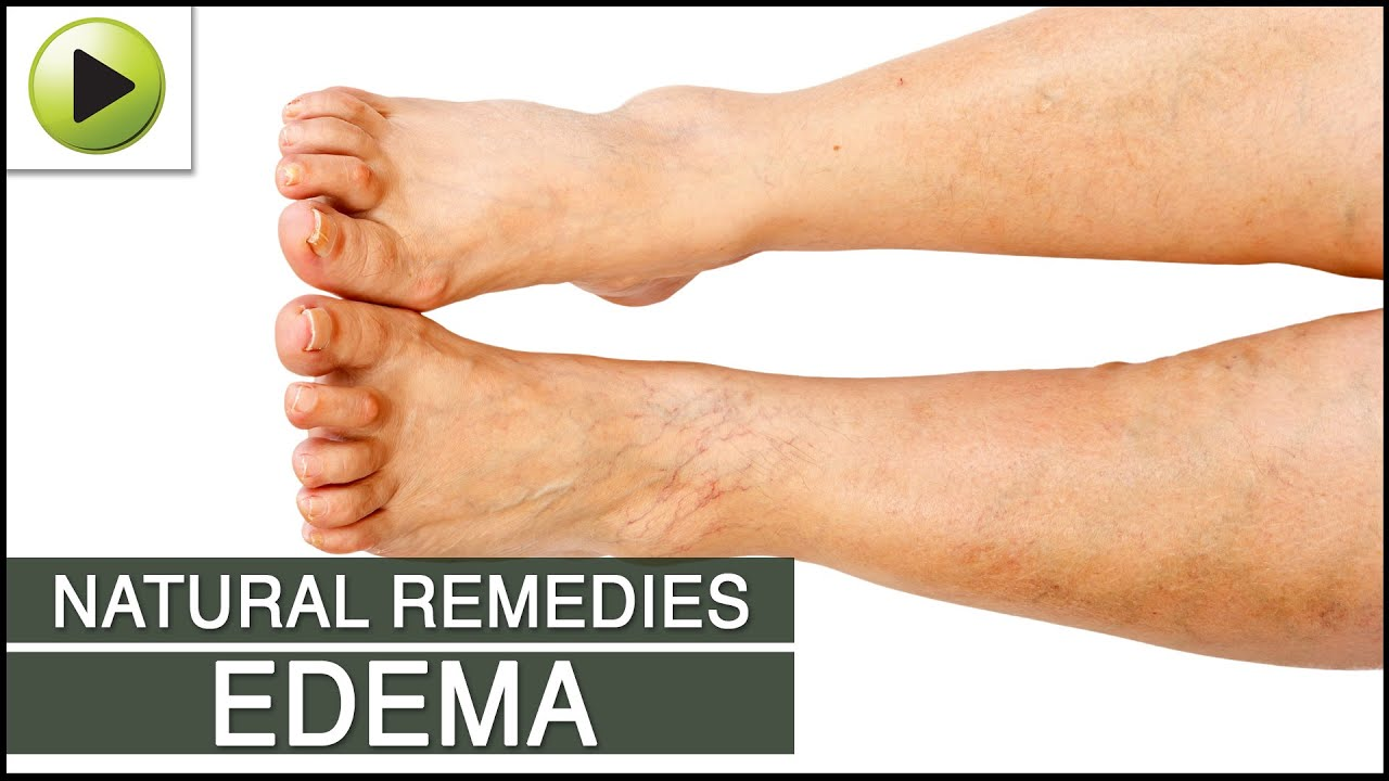 Natural Treatment For Edema Water Retention