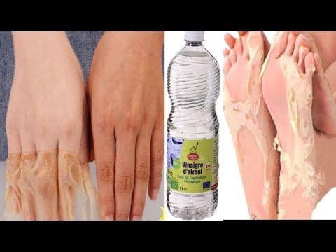 astuce naturelle au vinaigre pour avoir  les pieds et les mains parfaits