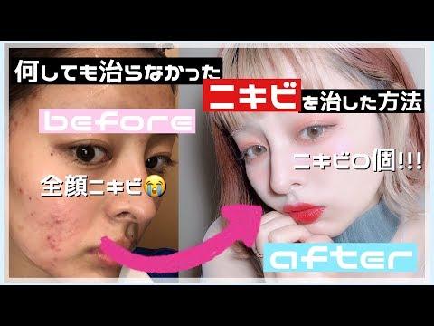 【肌荒れに悩んでる皆さんへ】皮膚科に行っても治らなかった全顔ニキビを治した方法【肌荒れ】【ニキビ】